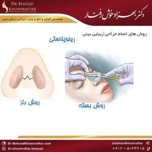 جراحی زیبایی بینی دکتر بهزاد خوش رفتار