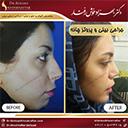 جراحی-بینی-و-پروتز-چانه-