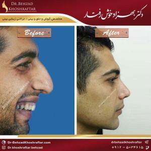 تغییر صدا بعد از جراحی بینی