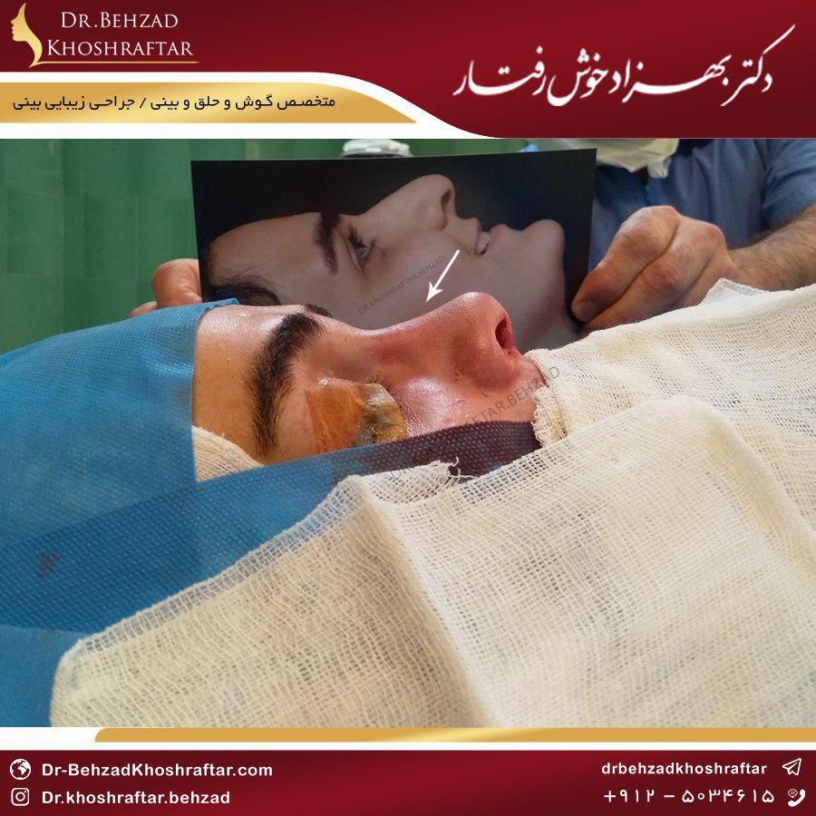 جراحی بینی و سرما خوردگی