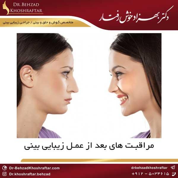 مراقبت های بعد از عمل زیبایی بینی