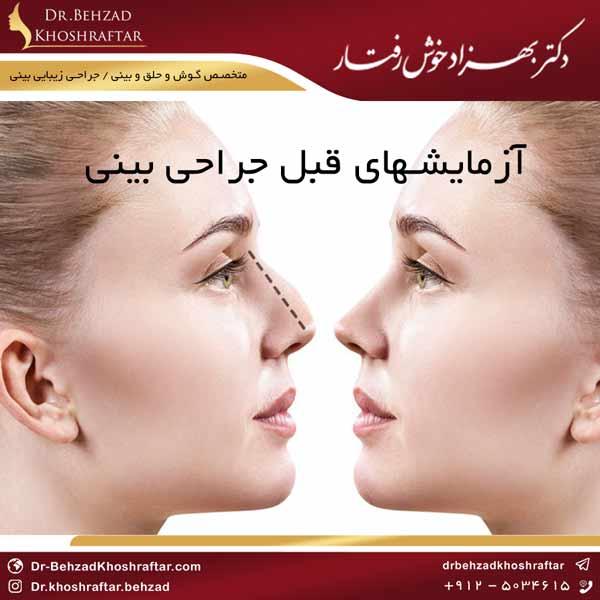 آزمایشهای قبل جراحی بینی دکتر بهزاد خوش رفتار