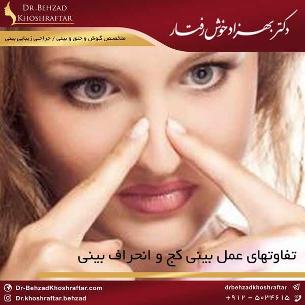 تفاوتهای عمل بینی کج و انحراف بینی دکتر بهزاد خوش رفتار