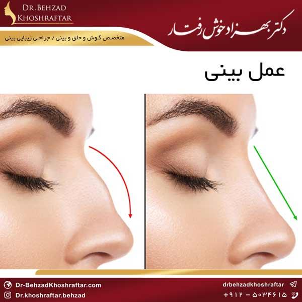 عمل بینی دکتر بهزاد خوش رفتار