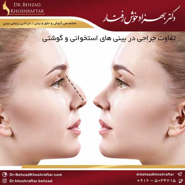 تفاوت جراحی در بینی های استخوانی و گوشتی دکتر بهزاد خوش رفتار