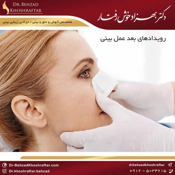 رویدادهای بعد عمل بینی دکتر بهزاد خوش رفتار