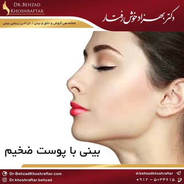 بینی با پوست ضخیم دکتر بهزاد خوش رفتار