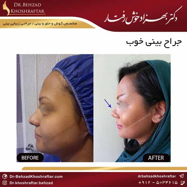 جراح بینی خوب دکتر بهزاد خوش رفتار