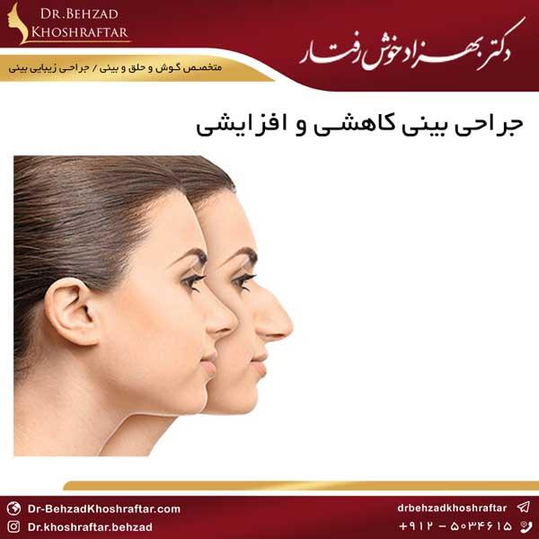جراحی بینی کاهشی و افزایشی دکتر بهزاد خوش رفتار